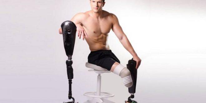 venezolano amputado de ambas piernas